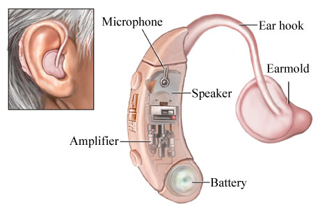 Alat Bantu Dengar Yang Terhubung Dengan Internet