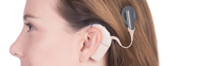 Implan Koklea, Solusi untuk Gangguan Pendengaran