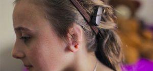 Tips Untuk Pengguna BAHA (Bone Anchored Hearing Aid)