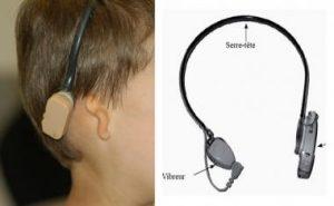 Bone Conduction Hearing Implant - Alat Bantu Dengar