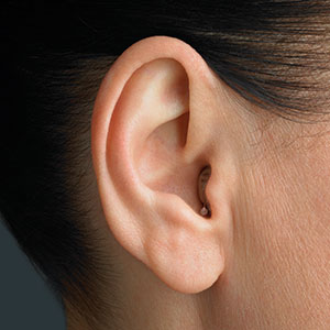 Keunggulan Alat Bantu Dengar Berdasarkan Tipe
